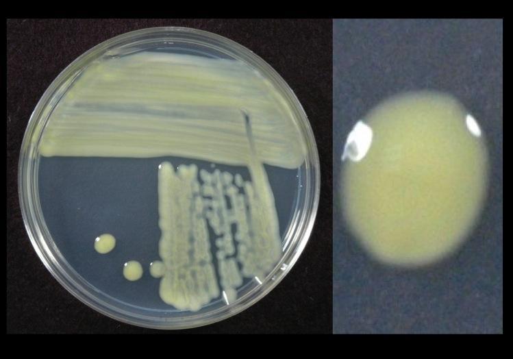 Xanthomonas campestris: descrição, cultivo e patologias 2