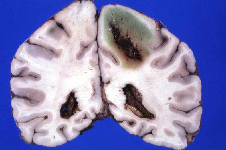 Abscesso cerebral: sintomas, causas e tratamento 1