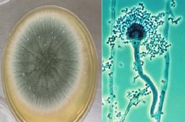 Aspergillus fumigatus: características, morfologia, doenças 1