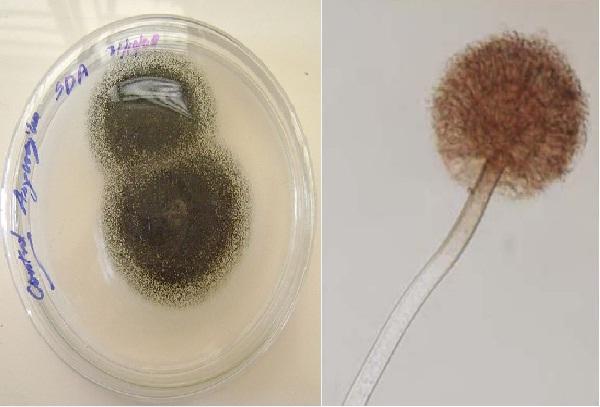 Aspergillus niger: características, morfologia e patologias 1