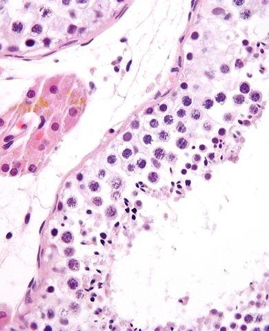 Espermatogênese: estágios e suas características 2