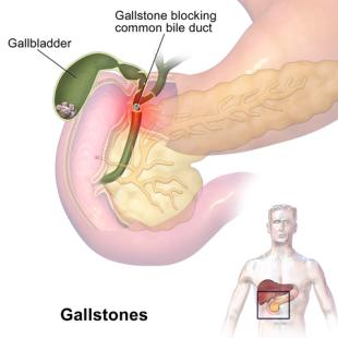 Ponto cístico: o que é, importância, anatomia da vesícula biliar 6