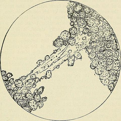 Sinal de Piskacek: o que é, anatomia, gravidez e gravidez 3
