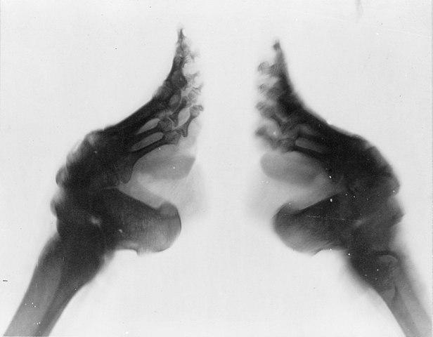 Pés de lótus: história, processo de bandagem, consequências 1