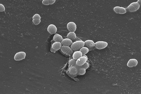 Enterococcus faecalis: características, morfologia, patogênese 2