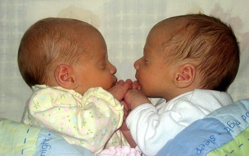 Gêmeos Univiteline: características, como eles se formam e digitam 1