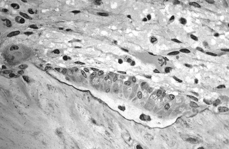 Osteoblastos: formação, características, funções, patologias 1