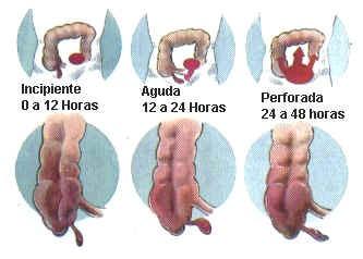 Psoas sinal: o que é, psoas anatomia muscular 5
