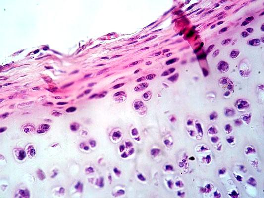 Cartilagem hialina: características, histologia, tipos e funções 1