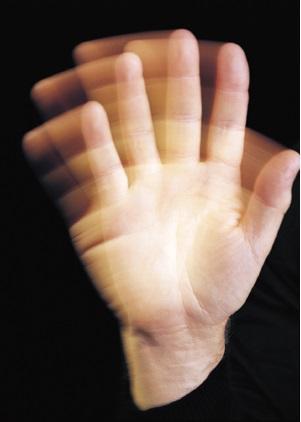 Asterixis: sintomas, causas e tratamentos 1
