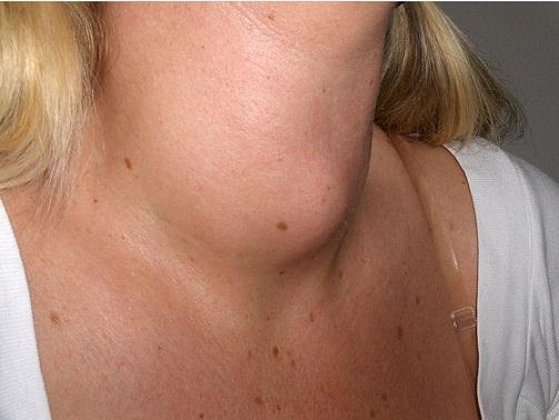 Perfil da tireóide: função hormonal, importância, quantificação 2