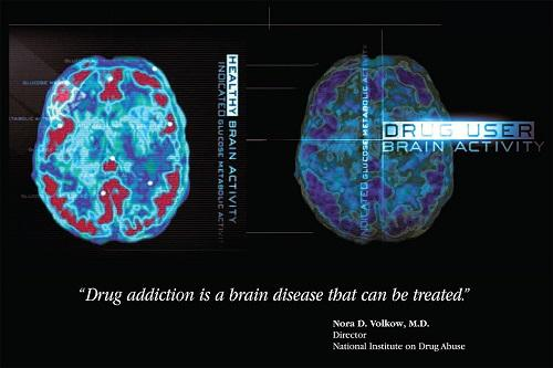Por que os componentes químicos das drogas causam dependência