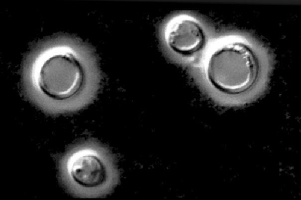 Cryptococcus neoformans: características, morfologia, patologia 1