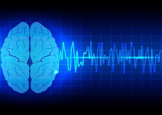 Epilepsia idiopática: sintomas, causas e tratamento 1