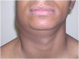 Tuberculose linfonodal: sintomas, causas, tratamento 1