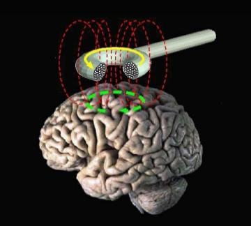 Estimulação magnética transcraniana: para que serve e tipos 5
