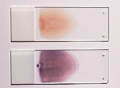 Esfregaço de sangue: características, tipos, técnicas e histologia 3