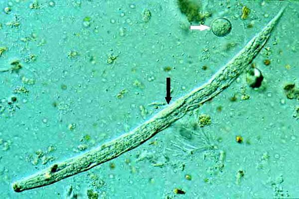 Strongyloides stercolaris: características, ciclo de vida, sintomas 1
