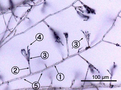 Penicillium: características, morfologia, habitat, reprodução 2