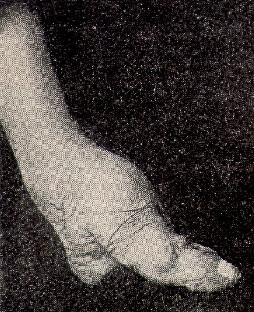Pés de lótus: história, processo de bandagem, consequências 4