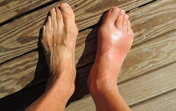 Uricemia: causas, sintomas, tratamentos 2