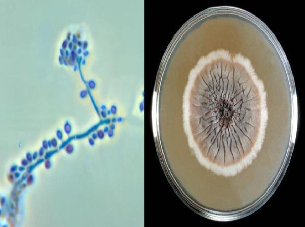 Sporothrix schenckii: características, morfologia, tratamento 1