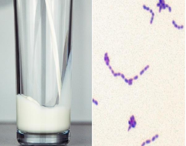 Streptococcus thermophilus: características, morfologia 1