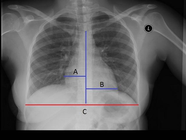 Cardiomegalia: sintomas, classificação, causas e tratamento 2