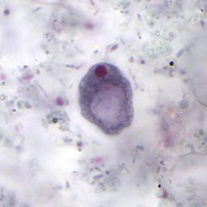 Iodamoeba bütschlii: características, morfologia, ciclo biológico 2