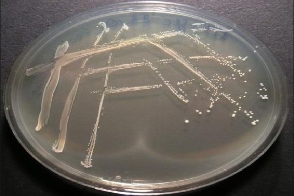 Lactobacillus: características, morfologia, benefícios 1