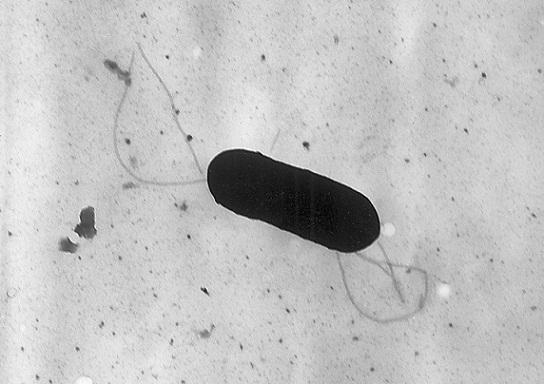 Listeria monocytogenes: características, morfologia e patogênese 1