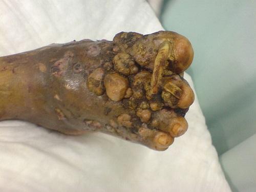 Nocardia brasiliensis: características, morfologia, doenças 2