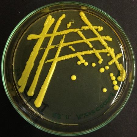 Micrococcus luteus: características, morfologia, doenças 2