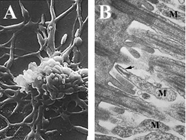 Mycoplasma pneumoniae: características, morfologia, patogênese 1