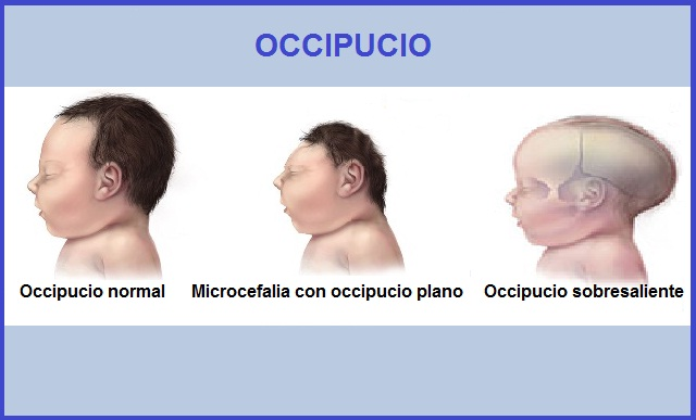 Occipital: características, funções, malformações 1