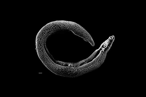 Helmintologia: origem, quais estudos, exemplo de investigações 1