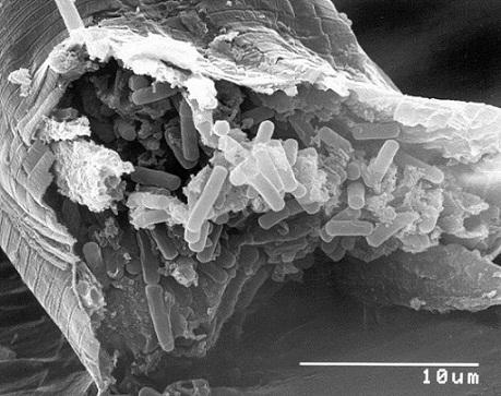 Bacillus thuringiensis: características, morfologia, ciclo de vida 3