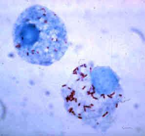 Rickettsia rickettsii: características, contágio, tratamento 1