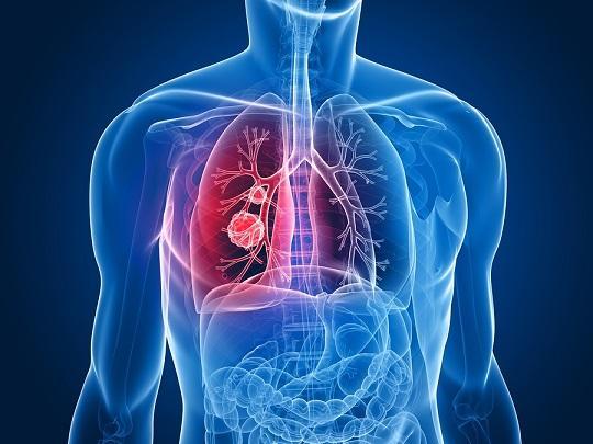 11 sintomas iniciais de câncer de pulmão 39