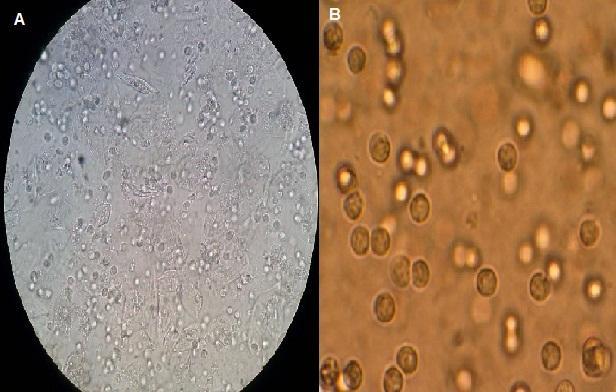 Sedimento urinário: técnica, composição, histologia 1