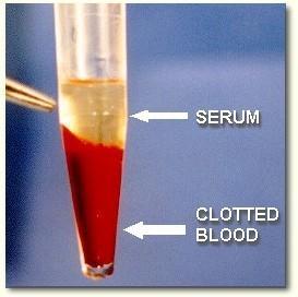 O que é soro sanguíneo? 1