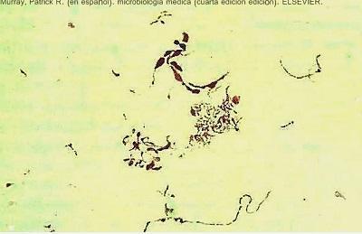 Streptobacilos: características, morfologia, espécies, doenças 1