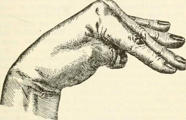 Tetania: sintomas, causas e tratamento 1