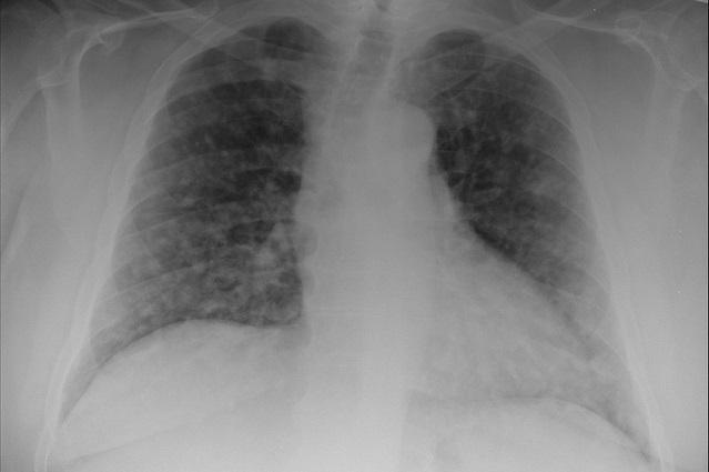 Hilio Pulmonar: Componentes, funções e causas 2