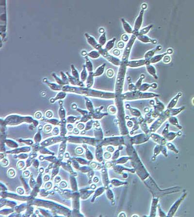 Trichoderma harzianum: características, morfologia, reprodução 1