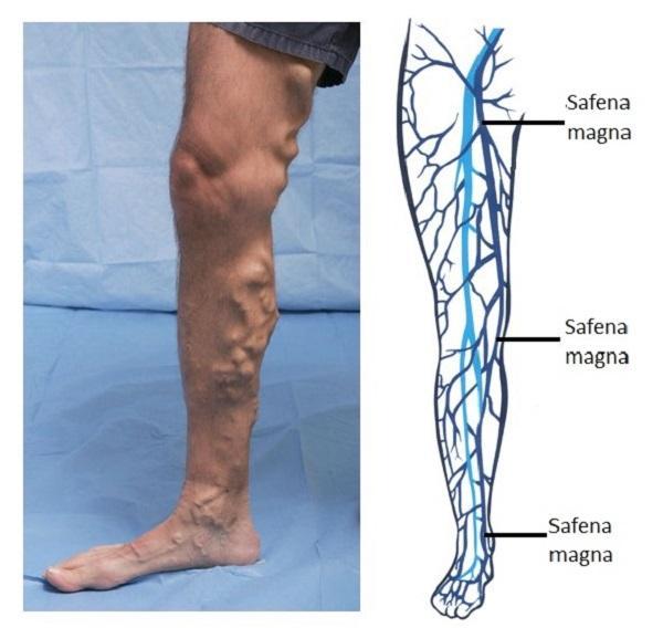 Safenectomia: o que é, complicações e recuperação 1