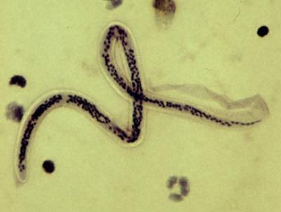 Wuchereria bancrofti: características, transmissão, sintomas 1