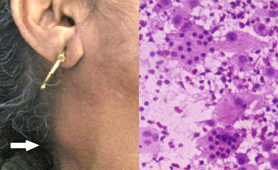 Adenomegalia: tipos, sintomas, causas, tratamentos 1