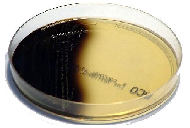Ágar biliar de Sculin: fundação, preparação e usos 1