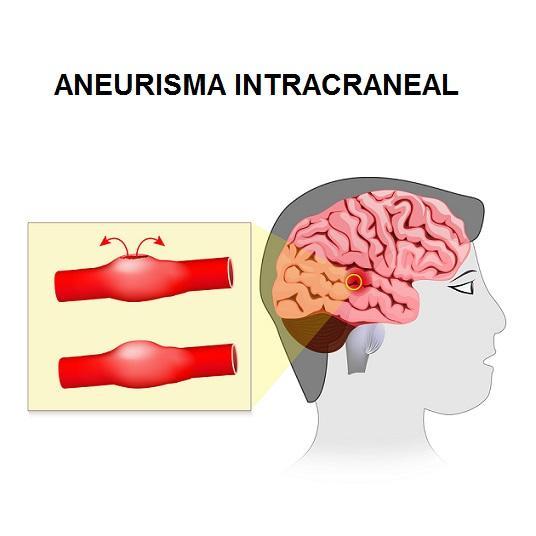 Amnésia anterógrada: sintomas, causas e áreas do cérebro 3